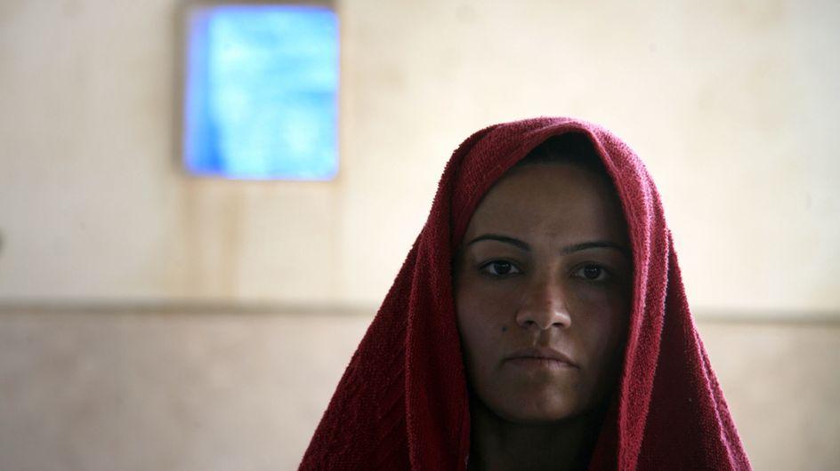 Esclave sexuelle de Daesh, elle se brûle le visage pour échapper au viol (Photos)