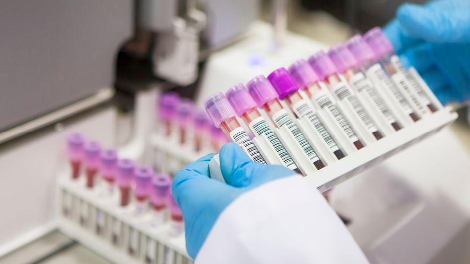 Investigación y cáncer de mama: así son los nuevos y esperanzadores avances