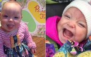 Seltenes Syndrom: Die kleine Paisley kam mit der Zunge eines Erwachsenen auf die