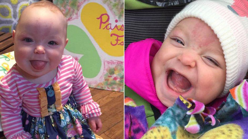 Seltenes Syndrom: Die kleine Paisley kam mit der Zunge eines Erwachsenen auf die Welt