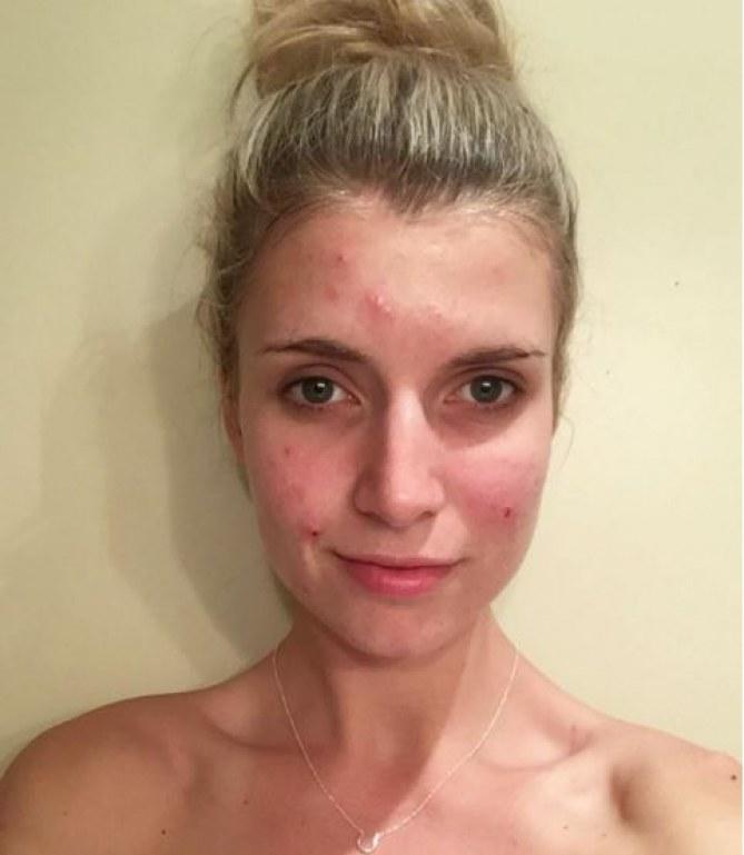Beck Lomas, une blogueuse populaire d'Instagram qui souffre d'acne
