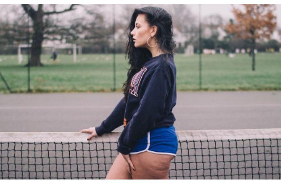 Vietato nasconderla: #CelluliteSaturday, il nuovo trend per mostrare il vero corpo delle donne