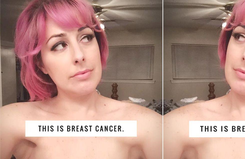DAS ist Brustkrebs - Diese Mutter hat eine Botschaft für alle Menschen, die sie anstarren