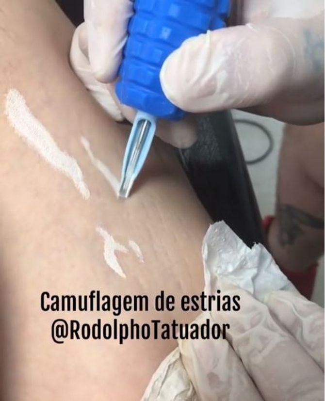 Le tatoueur Rodolpho Torres fait disparaître les vergetures sous vos yeux