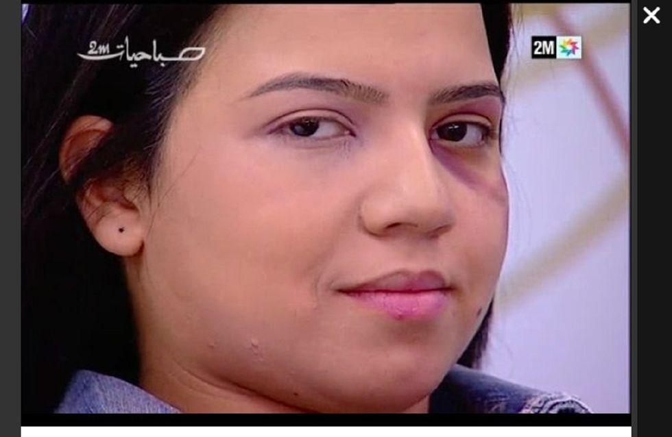 Tutorial shock su come coprire i lividi con il make-up. Il video assurdo della tv marocchina nel giorno delle donne