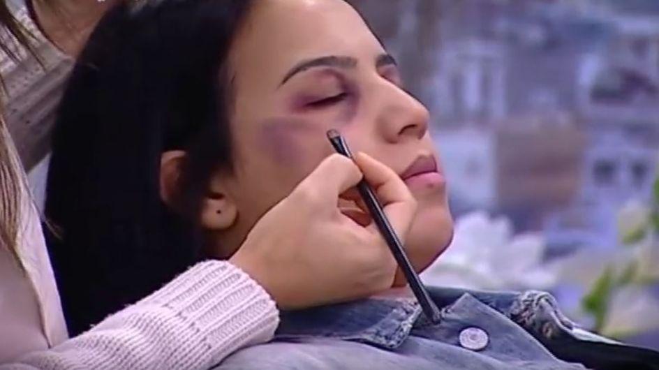 Im Ernst?! Dieser TV-Sender gibt Schminktipps für Opfer von häuslicher Gewalt
