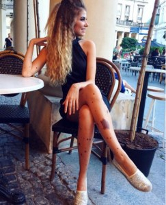 Yulianna Yussef a une maladie de peau très rare, qui provoque des tâches brunes sur le corps.