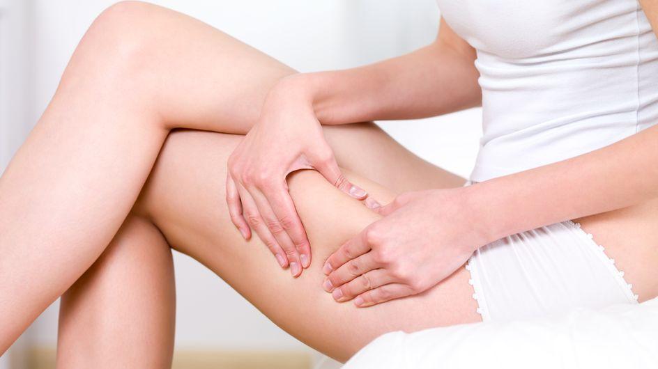 Comment venir à bout de la cellulite ?