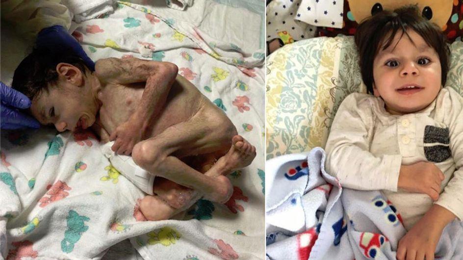 Er wog nur noch 4 Kilo: Die unglaubliche Verwandlung eines 7-jährigen Waisenjungen
