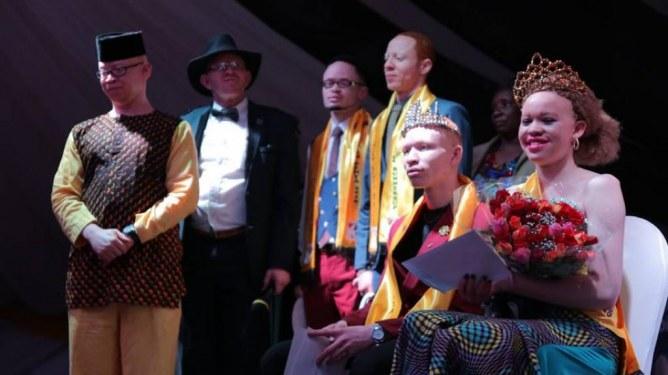 Loise et Jairus, Miss et Mister Albinisme Kenya