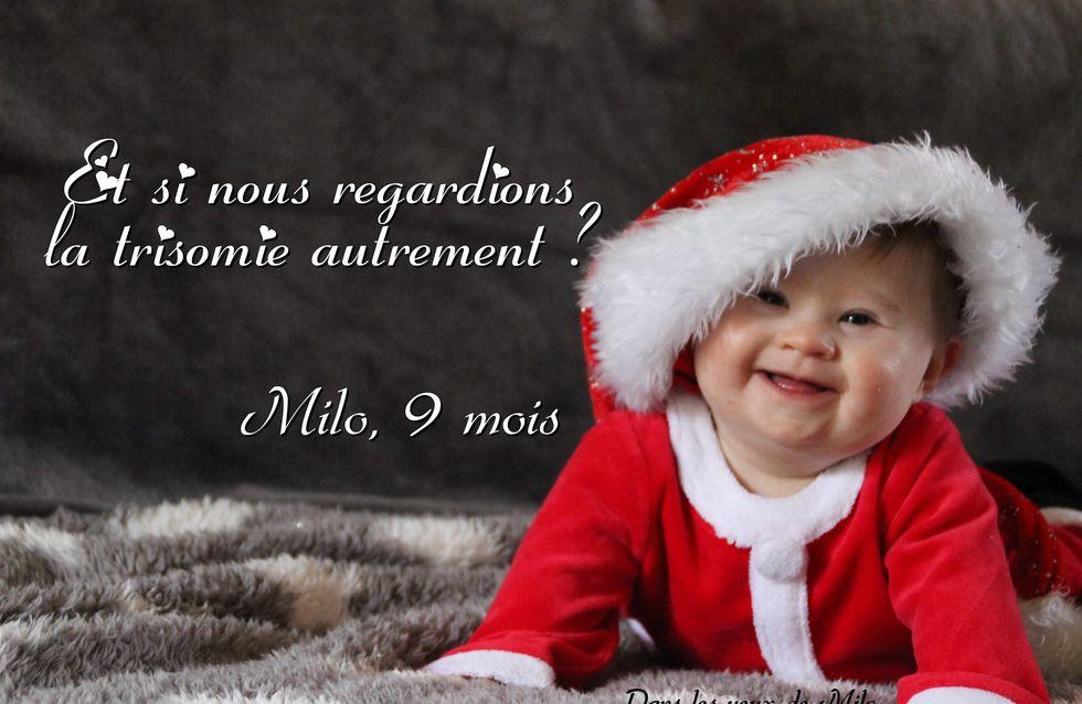 Milo, un bébé atteint de trisomie 21, gagne un concours de photo. Enfin !