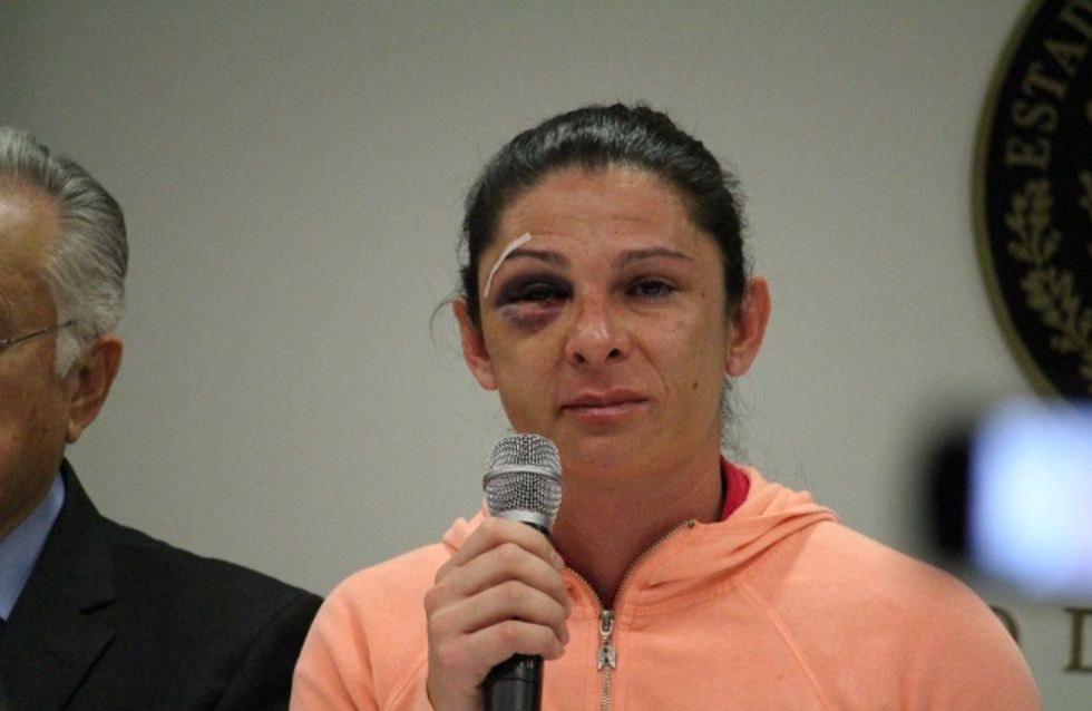 Cette sportive mexicaine a été battue et insultée simplement parce qu'elle est une femme (Photos et Vidéo)