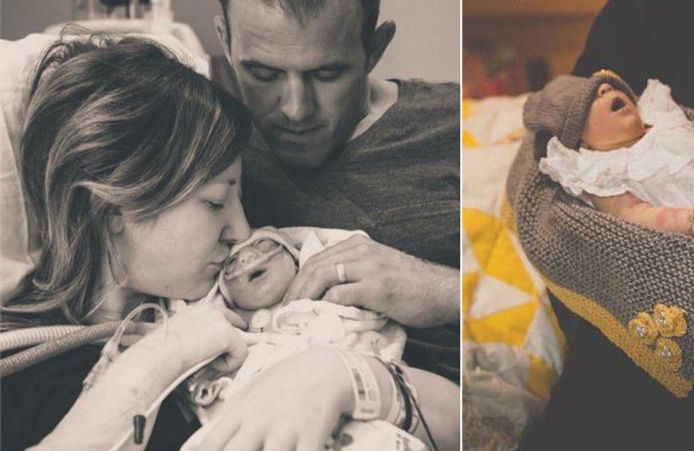 Die Ärzte geben ihrem Baby keine Überlebenschance - doch sie bringt es trotzdem auf die Welt
