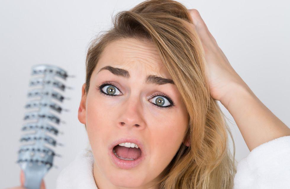4 situazioni imbarazzanti che se hai la forfora ti puoi ritrovare ad affrontare