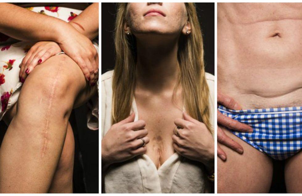 Ces 24 guerrières dévoilent leurs cicatrices pour inciter les femmes à s'aimer (Photos)