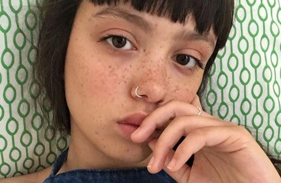 Bourrelets, poils et cicatrices… Ce mannequin assume tout et envoie un message ultra positif (Photos)