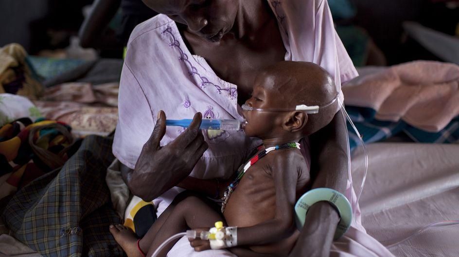 Pendant ce temps-là, les enfants meurent de faim au Sud-Soudan (Photos)