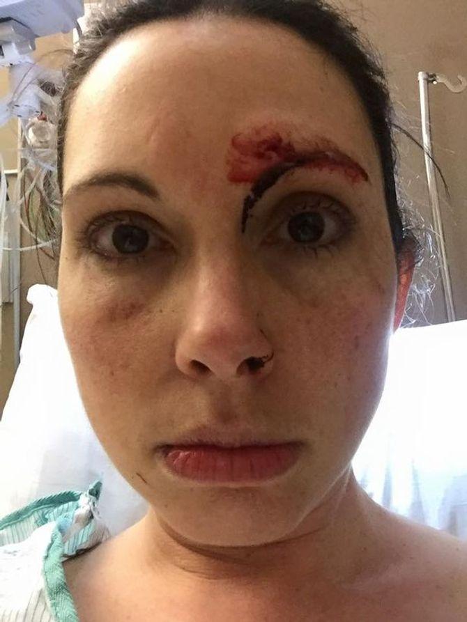 Elle témoigne après son agression durant un footing