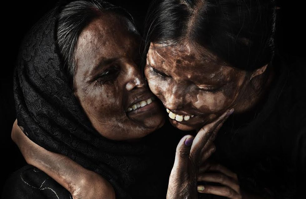 Ce photographe met en lumière la beauté de femmes victimes d'attaques à l'acide (photos)