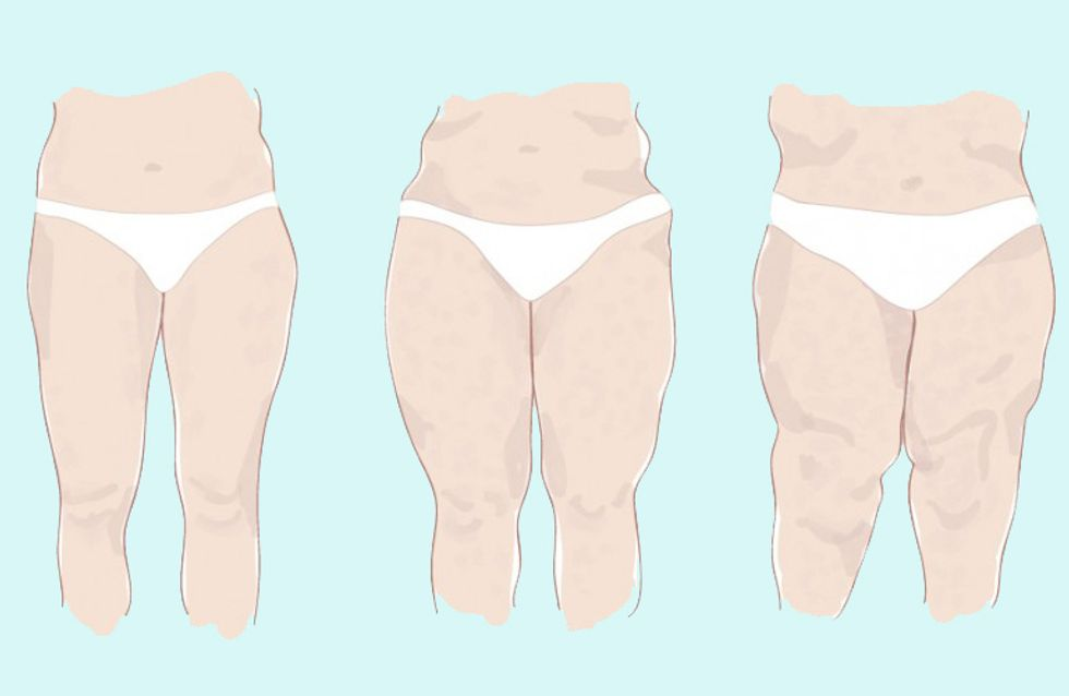 Lipödem erkennen: Dicke Beine und nichts hilft? Das könnte dahinter stecken!