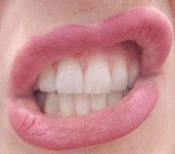 Regenerate, il kit innovativo per lo smalto dei denti che abbiamo provato per vo