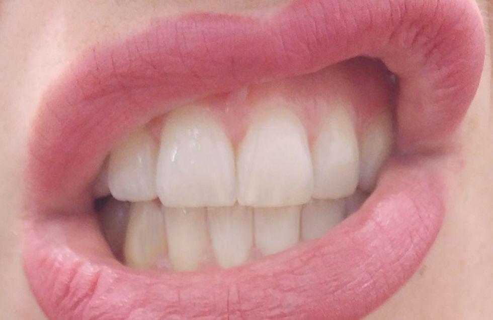 Regenerate, il kit innovativo per lo smalto dei denti che abbiamo provato per voi
