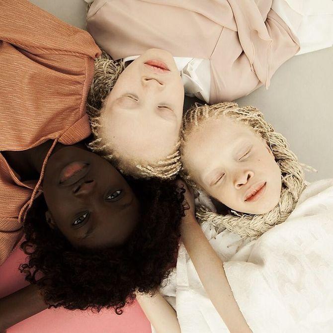 Ces jumelles albinos n'ont que 11 ans mais secouent déjà la fashion sphère