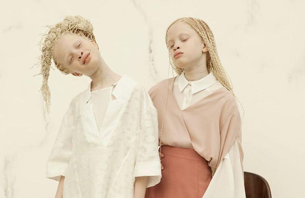 Ces jumelles albinos n'ont que 11 ans mais secouent déjà la fashion sphère (Photos)
