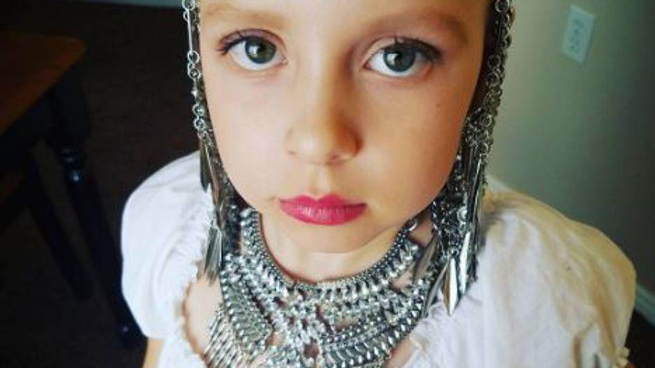Elle souffre d'alopécie et sa maman a choisi de l'aider de la plus belle des façons (Photos)