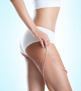 Smagliature: rosse o bianche, ecco cause e rimedi per eliminarle da seno, pancia