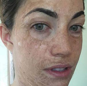 Masque Hanacure à effet vieillissant