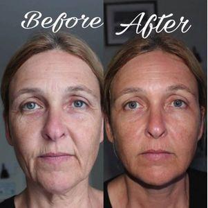 Effet avant/après du masque