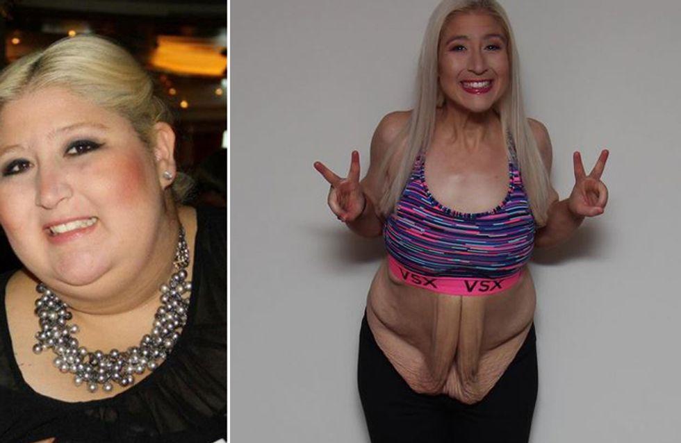 Diese Frau verlor fast 160 Kilo - und zeigt nun anderen, wie sie es geschafft hat!