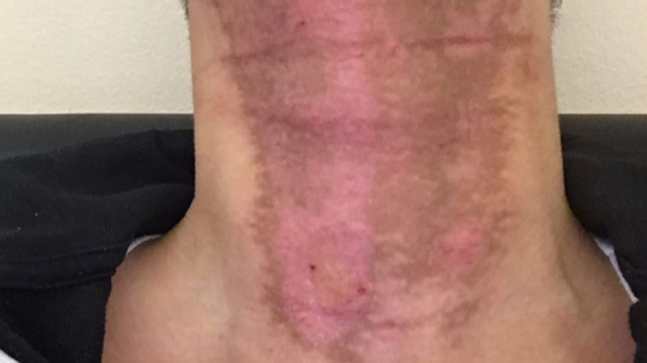 This Woman Mixed Essential Oils With A Sunbed And Suffered Third-degree Burns