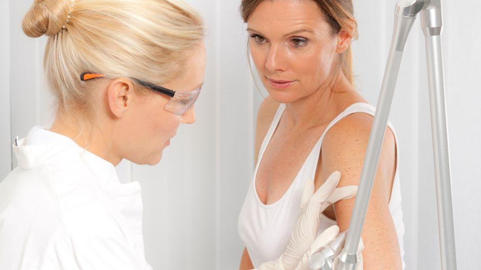 Semaine de prévention du cancer de la peau : on fonce faire le dépistage gratuit !