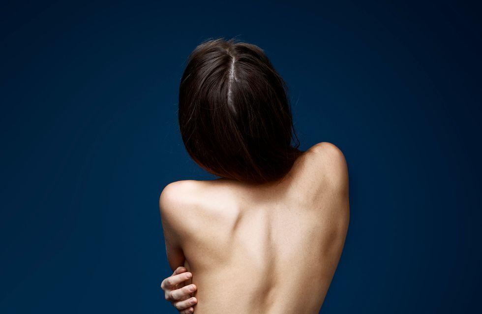 Komplett ausgebrannt? Wie du das Burnout-Syndrom erkennen und vermeiden kannst