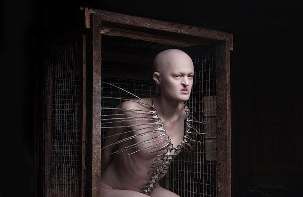 Melanie Gaydos, la modelo con un trastorno genético que rompe con los clichés de la moda