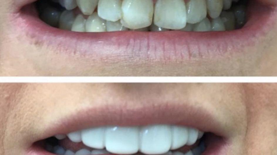 Clip On Teeth Veneers Are Here To Make You Look Like A Real Life Ross Geller
