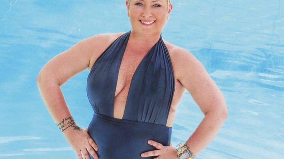 Carolyn Smith in costume, dopo il cancro al seno, esorta le donna ad amarsi e non vergognarsi!