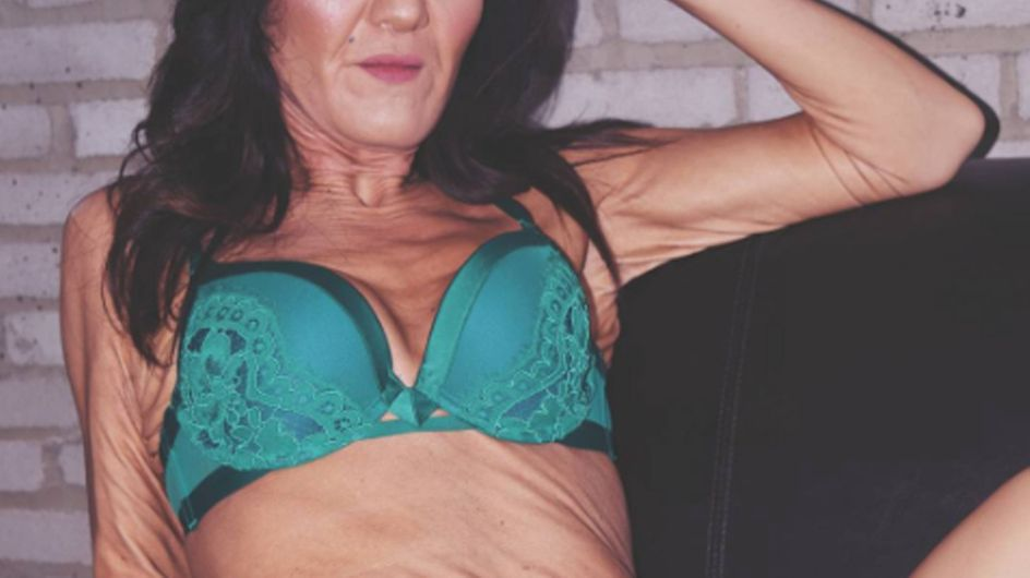 This 26 Year Old With Wrinkles Is Teaching Us To Love Our Bodies