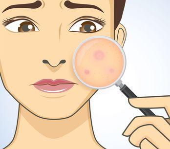 Unterirdische Pickel: Das hilft gegen die Knubbel unter der Haut
