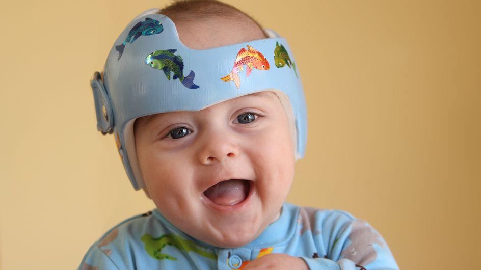 Jonas muss einen Helm tragen: Die Reaktion seiner großen Schwester ist einzigartig