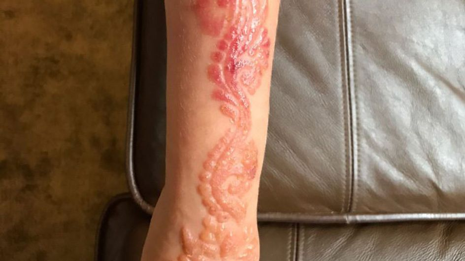 This 7-year-old Girl Suffered Horrific Burns After Getting A Holiday Henna Tattoo