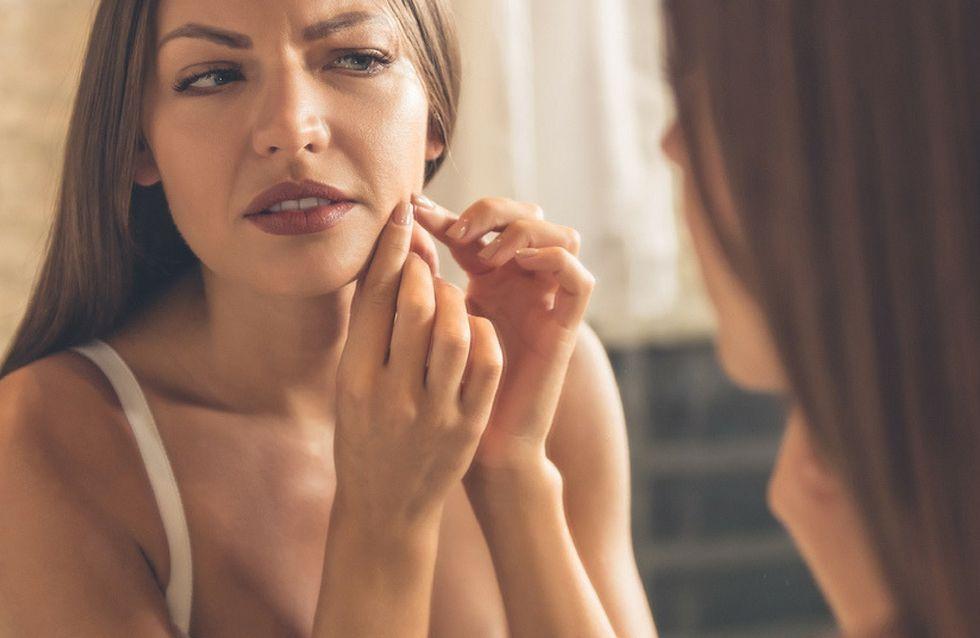 7 falsi miti sull'acne che sarebbe meglio conoscere