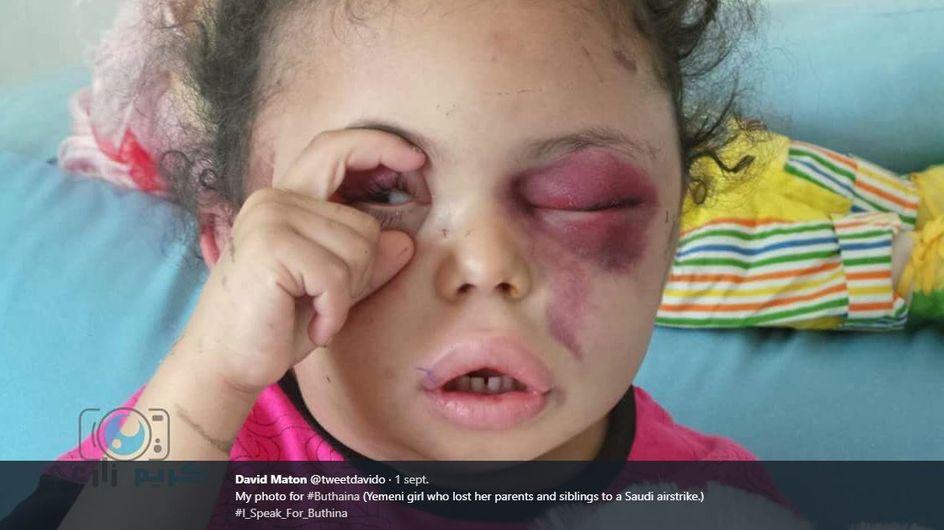 Pourquoi la terrible photo du visage de cette petite fille a fait le tour du monde