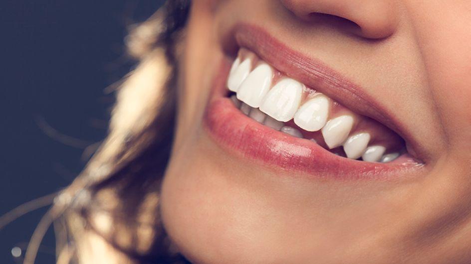 Denti sensibili: cause e rimedi più efficaci