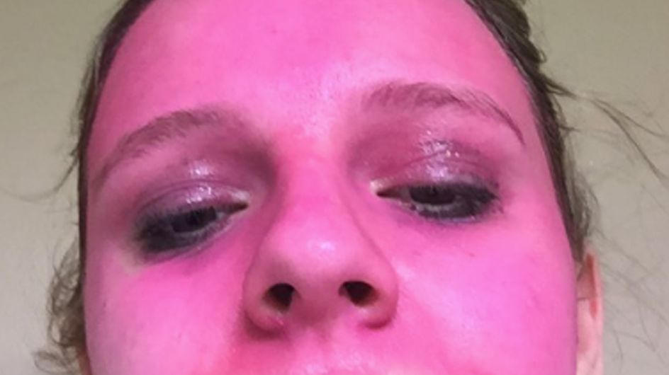 Woman's Face Stained Pink After Applying 'Washable' Glitter Paint