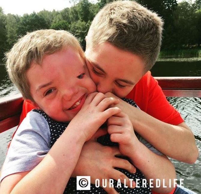 """""""Je suis fière du visage de mon fils"""", cette maman répond après la censure d'une photo de son fils"""