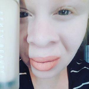 Krystal Robertson est albinos