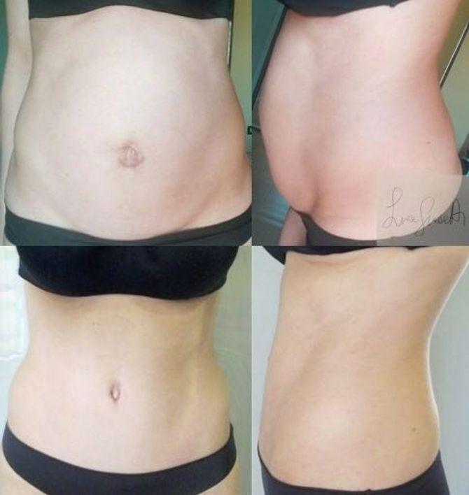 Diastasi addominale: prima e dopo